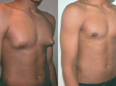 عملية التثدي عند الرجال