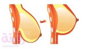 عملية رفع و شدّ الثدي