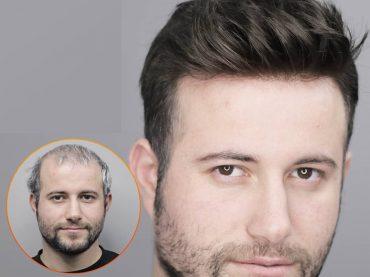 تركيب الشعر الاصطناعي