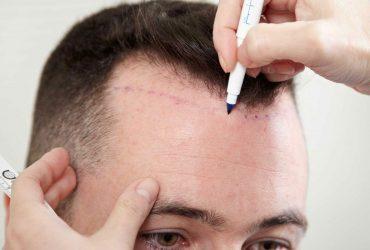زراعة الشعر بتقنية FUE