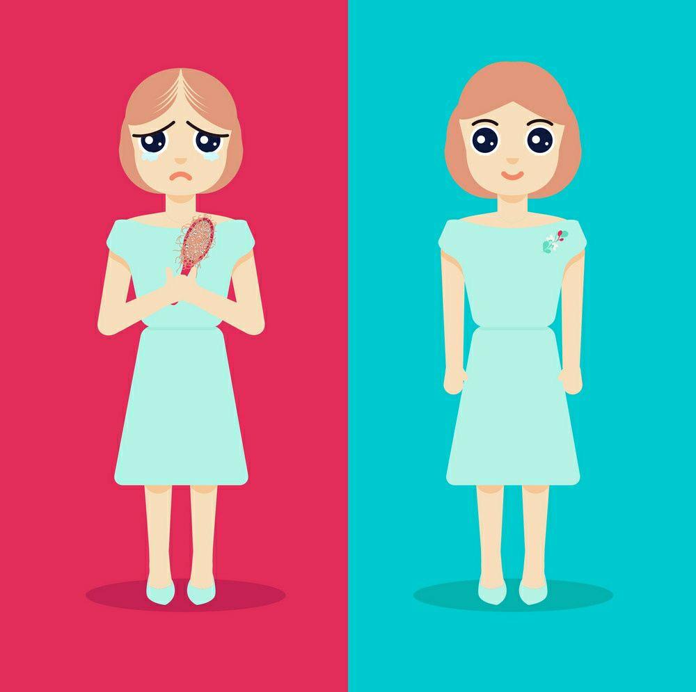 ما يجب أن تعرفه النساء عن زراعة الشعر